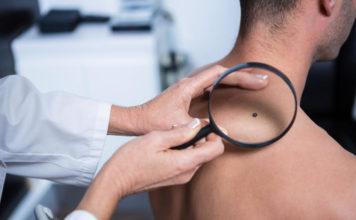 Naczyniak - lekarz obserwujący przez lupę zmianę skórną na plecach mężczyzny.
